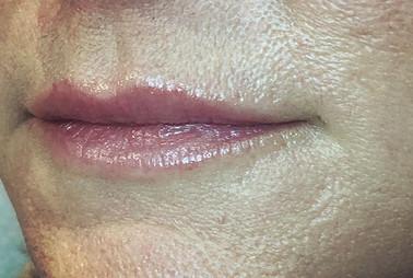 _HEALED_ lipblush_ natural lip line + so