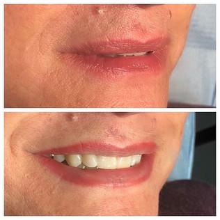 Gradient lip line procedure.  Giving the
