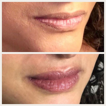 Who loves lips___ I LOVE lipblush treatm