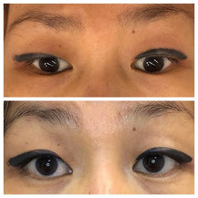 Corrective eyeliner tattoo procedure