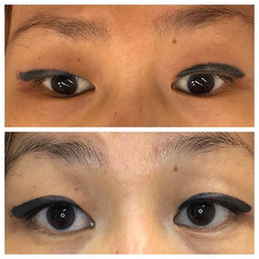 Corrective eyeliner tattoo procedure