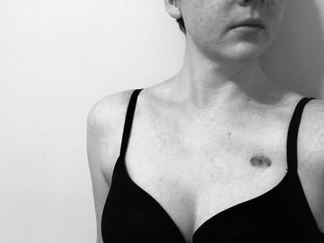 A Mastectomy Is Not A Boob Job, So Please Stop Saying That