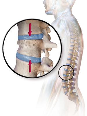 กระดูกสันหลังยุบจากโรคกระดูกพรุน