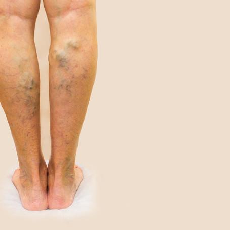 เส้นเลือดขอด เป็นโรคของผู้หญิง จริงหรือ?