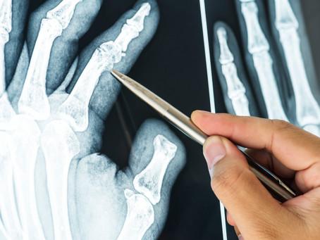 La osteoporosis y las fracturas