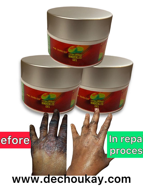 NUCKLES GEL  SPECIAL EXTRA STRONG