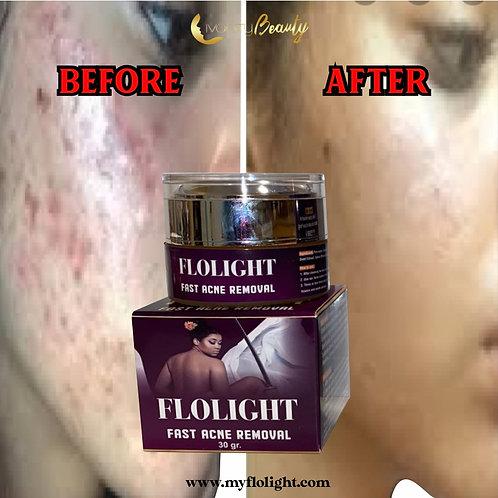Flolight fast acne removal gel