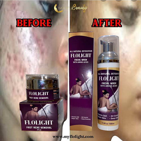 Flolight fast acne removal