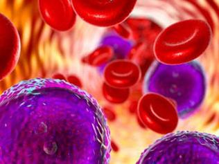 Leukaemia Photo (1).PNG