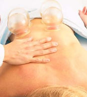 massage-cupping.jpg