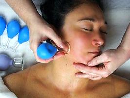 Facial-Cupping-Rejuvenation.jpg
