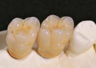 Galerie Beispiel Implantate