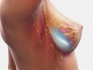 As 5 dúvidas mais comuns sobre implantes de silicone.
