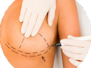 Mamoplastia: antes ou depois dos filhos?