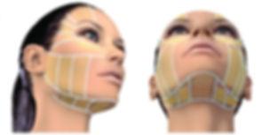 Alquiler Equipo Estetica Venus Legacy Celulitis Arrugas Flacidez Rosario