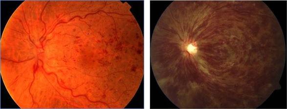 trombosi venosa retinica