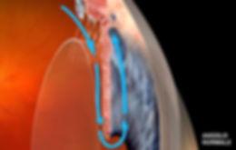Angolo iride-cornea