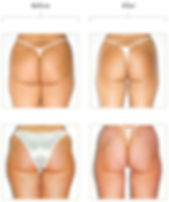 Endermologie-Before-After-Photos-Buttock