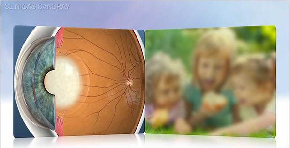 cataract-overview.jpg