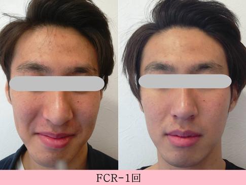 FCR施術1回