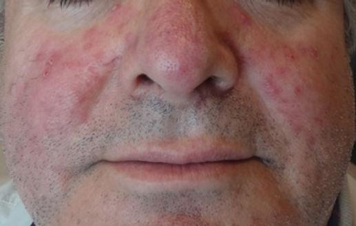Roza – Gül Hastalığı nedir?