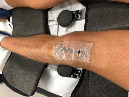 Case Study: Rehabbing an injured Para-Triathlete