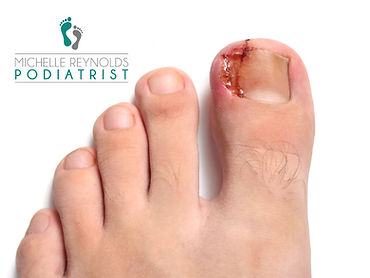 ingrown ingrowing toenail painful