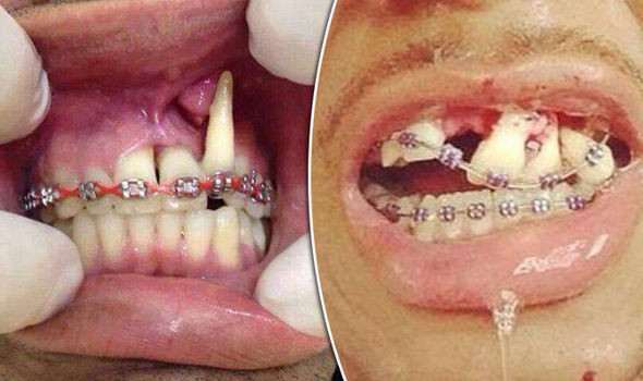 Fake Braces , Bogus Dentist