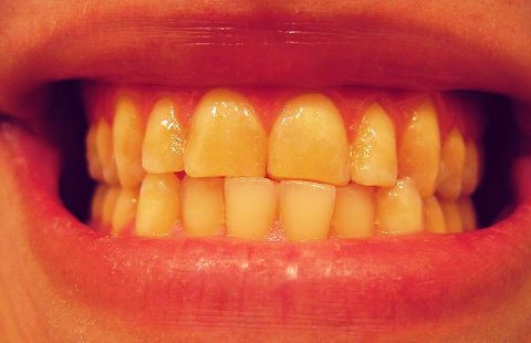 Why Did My Teeth Change Color?