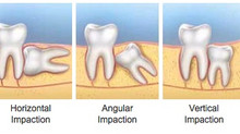 Impacted Wisdom Teeth