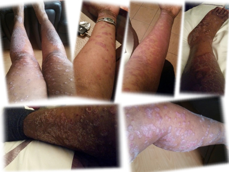 psoriasis on arms and legs during flare