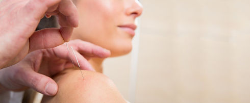 acupuncture.treatment-612x252.jpg
