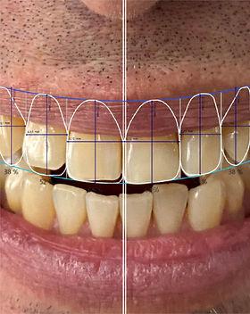 Proyección de sonrisa 3D con software para diseñar con Meditek labs