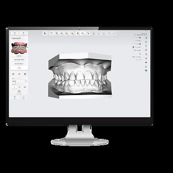 software diseño digital dental odontología con mediteklabs