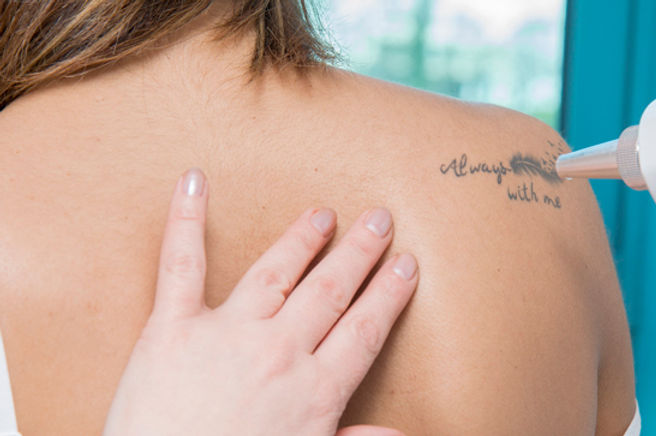 Máquina láser q-switched nd yag para borrar tatuajes