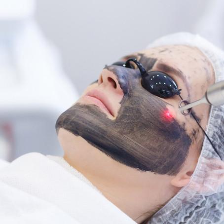 Redescubre tu piel con el PEELING LÁSER DE CARBÓN ACTIVO