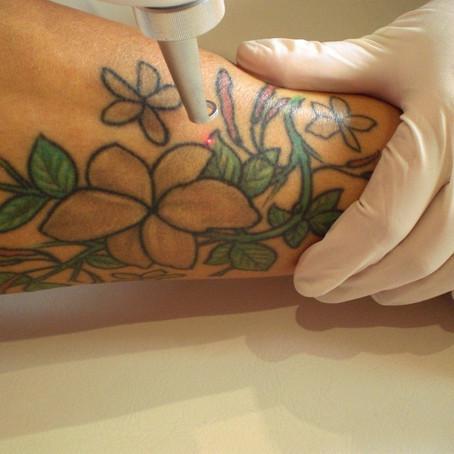 Cuidados después de tu sesión láser: La curación del tatuaje
