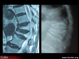 Fractura osteoporótica