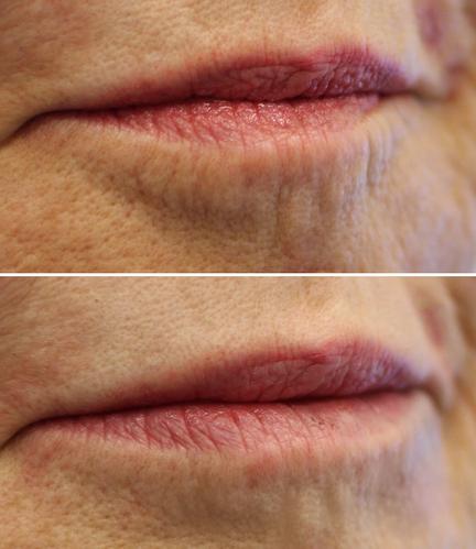 Lipstick Lines/ Lips