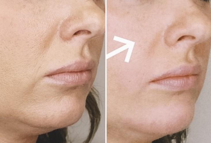 Nasolabial Folds & Chin