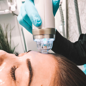 Microneedling: Everything You Need To Know