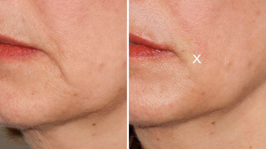 Marionette Lines, Jowls, and Nasolabial Folds