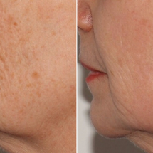 You've Gotta Try This Anti-Aging Treatment!