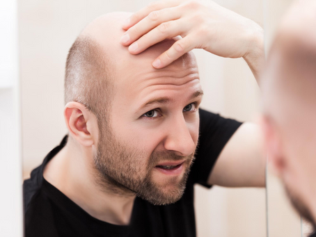 Alternatives to Hair Loss Surgery: Is Platelet-Rich Plasma Therapy Right for You?