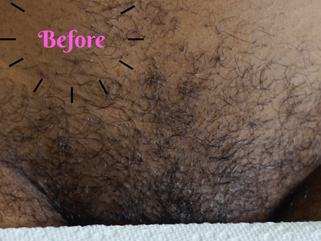 Sugar Waxing... What's the hype?