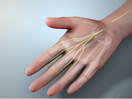 Carpal Tunnel Syndrome – Definition, Causes, and Treatments