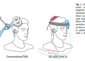 What is TMS and can it help treat withdrawal, addiction, and patients with SUDs like it can treat de