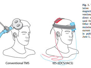 What is TMS and can it help treat withdrawal, addiction and depression?