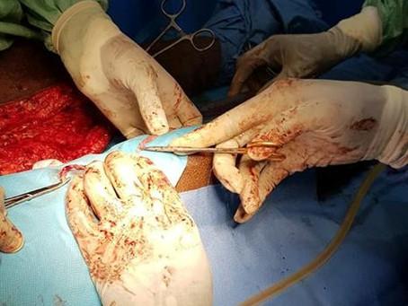 Chirurgie - Sauvetage d'un membre en artérite oblitérante