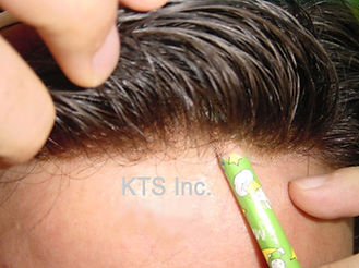 lace front hair replacement systems